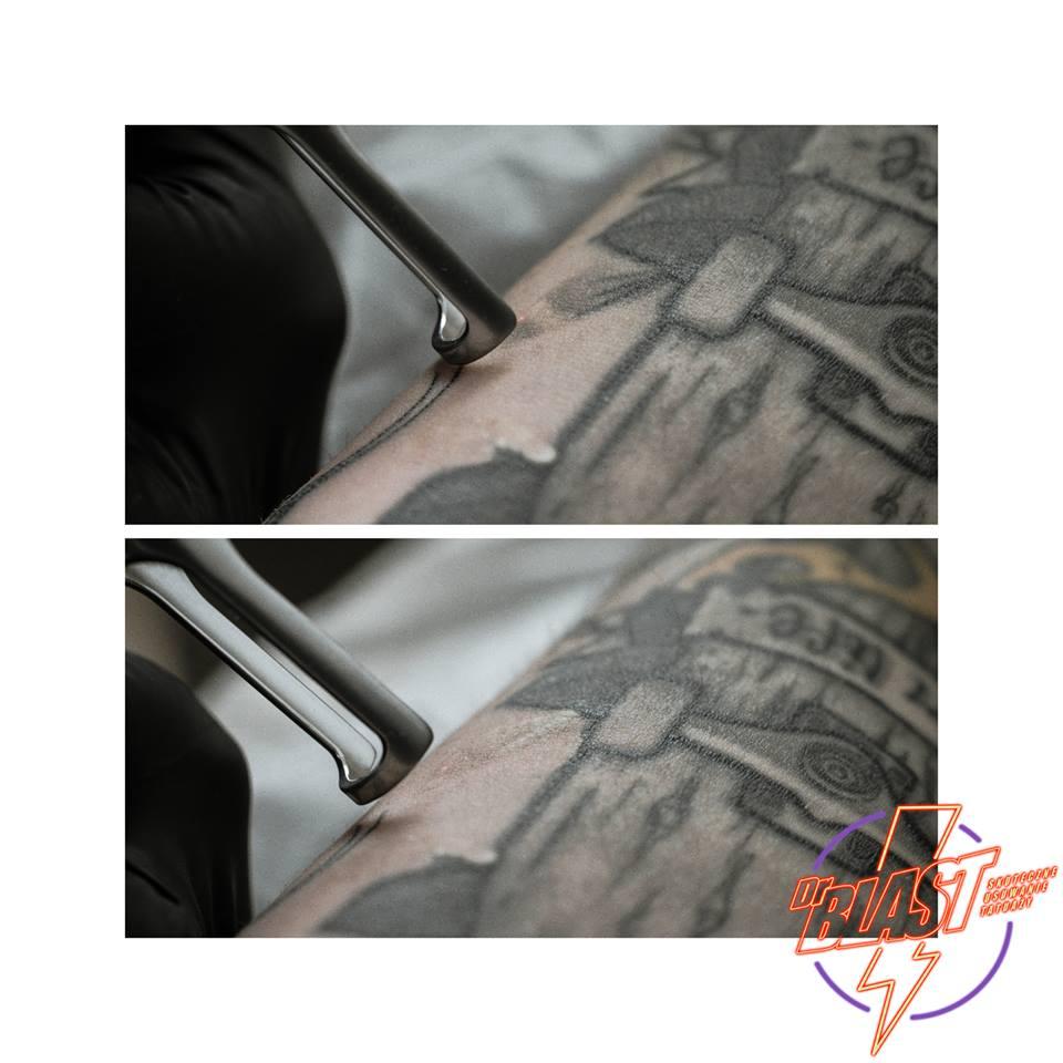 Dr Blast - skuteczne usuwanie tatuaży